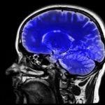 blue light causes brain damage