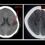 Glioma and Meningioma