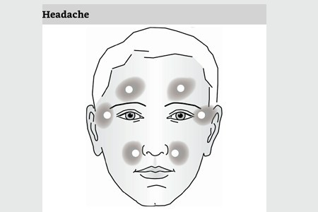 Light and Laser guide headache face treatment points