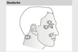 Light and Laser guide headache side of face treatment points