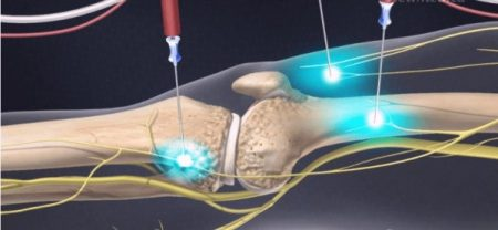 COOLIEF* knee injection of radiofrequency ablation device