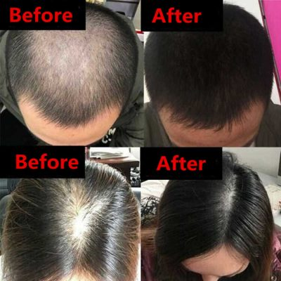 Before and after hair growth red light therapy