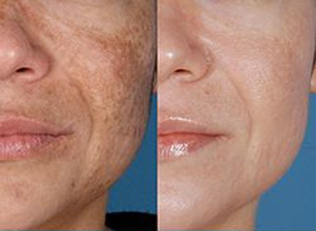 Melasma hyperpigmentation before and after treatment
