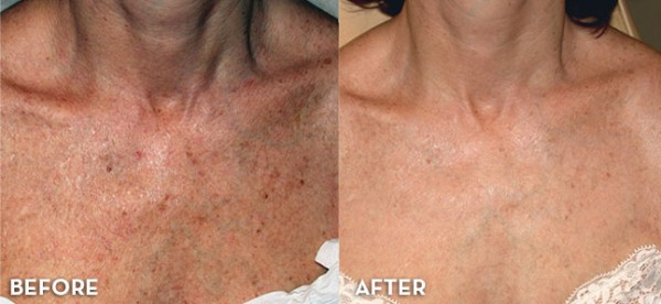 LED light therapy effect on sun damage in the chest area