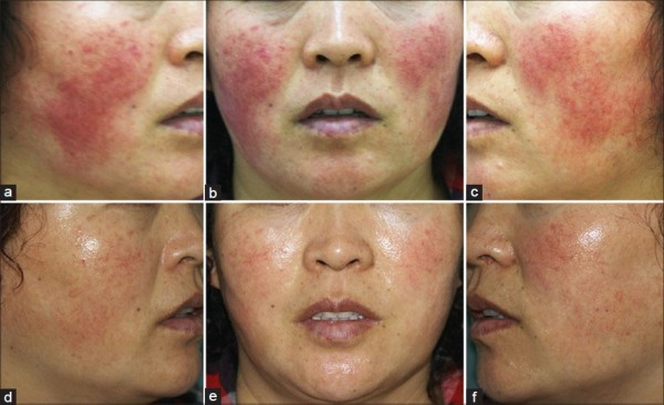 Before and after treatment erythmea