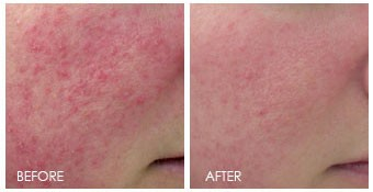 Before and after light therapy on photodamaged red skin