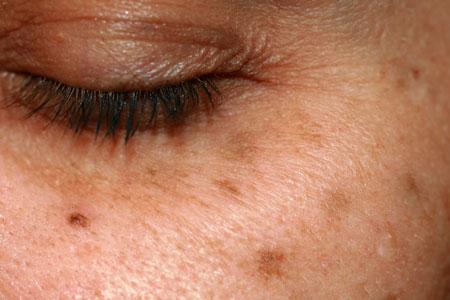 Solar lentigines age brown spots