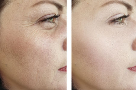 Before and after red light therapy on photodamage eye wrinkles.