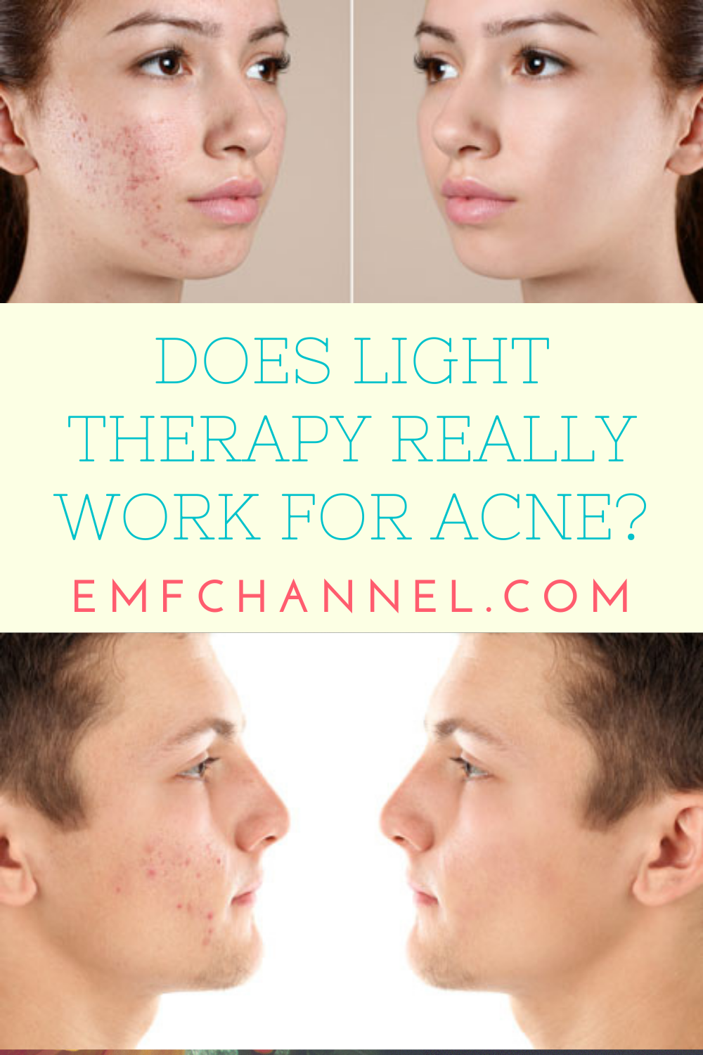 Does Light Therapy Really Work for Acne?