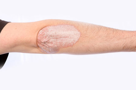 UVB, blue, red and infrared light help with psoriasis