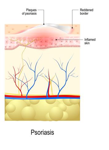 Psoriasis skin illustration